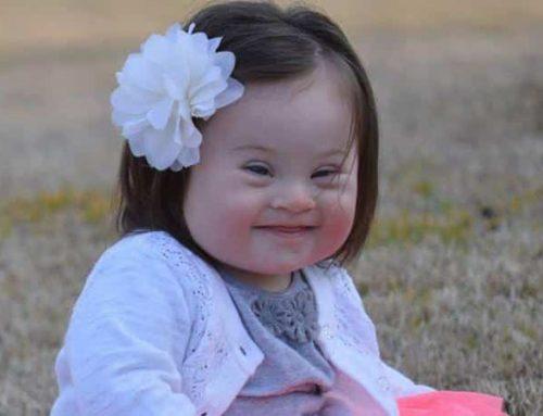 INT / Down Syndrom: Menschen mit Down Syndrom dürfen am 21. März vor den Vorhang
